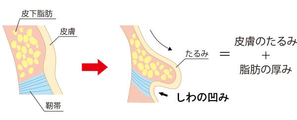 たるみは皮膚のたるみと脂肪の厚みが原因(しわ)