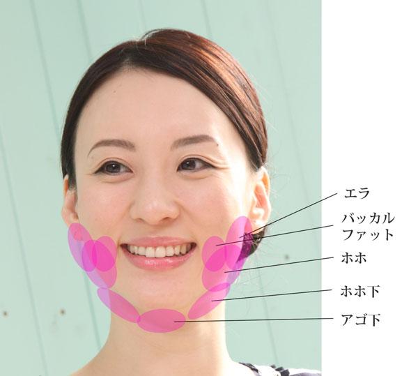 お顔のボリュームを減らしたい部分