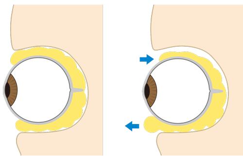 眼窩脂肪の加齢変化