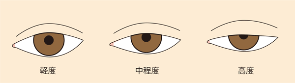 眼瞼下垂程度
