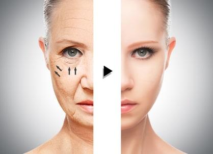 ヒアルロン酸による中顔面のリフトアップ(フィラーリフト)