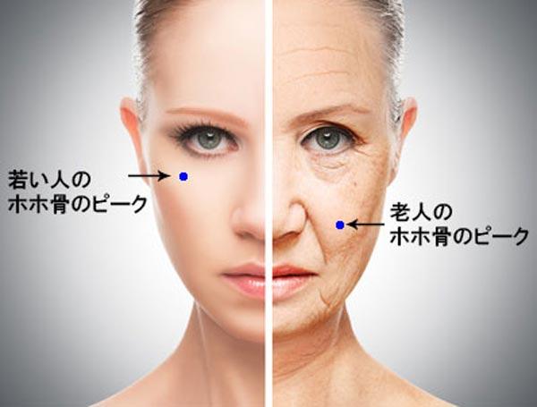 頬骨のピークの違い