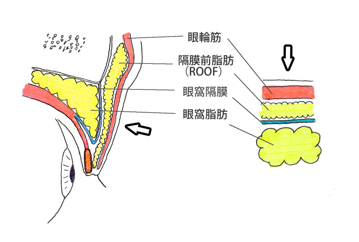 上まぶたの解剖(ROOFや眼窩脂肪)