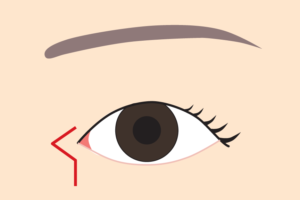 目頭切開Z形成の傷跡
