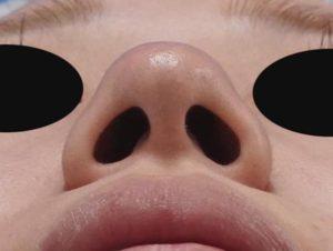 鼻尖縮小、軟骨移植、鼻翼縮小(内側+外側) 下から 術前