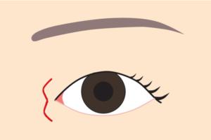 目頭切開W形成の傷跡