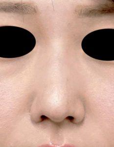 鼻尖縮小、軟骨移植、鼻翼縮小(内側+外側) 正面 1ヶ月後