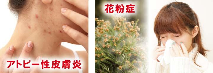 アトピー 花粉症 アルベックス