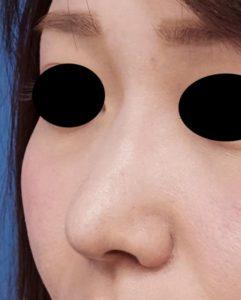 鼻尖縮小、軟骨移植、鼻翼縮小(内側+外側) 左斜め 1か月後