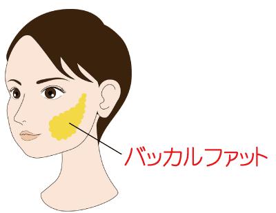 バッカルファット-正面図