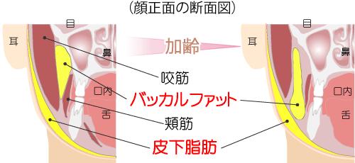 バッカルファット(顔の正面の断面図)
