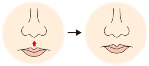 鼻下長短縮(リップリフト)イメージ