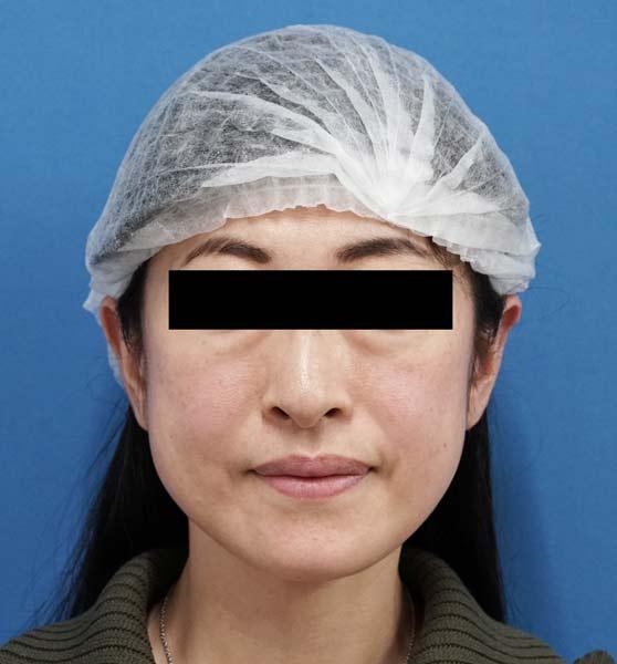 ミントリフトミ二12本 手術直後、1週間後のBefore写真