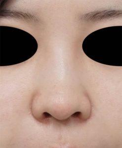 鼻翼縮小(フラップ法) 1ヶ月後