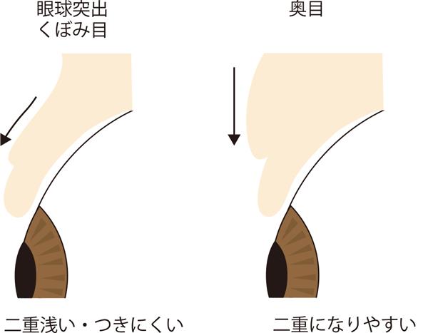 くぼみ目と奥目