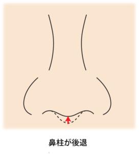 鼻柱が後退している図
