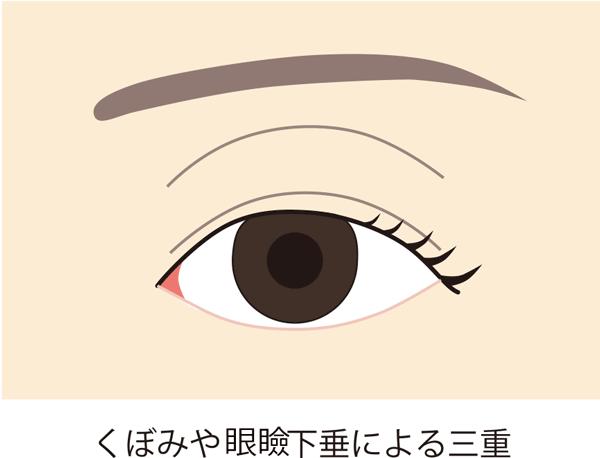 くぼみや眼瞼下垂による三重
