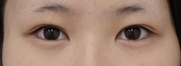 切らない眼瞼下垂プレミアム術前⇒三か月後のAfterの写真