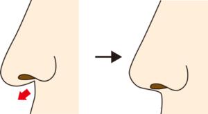 鼻柱基部下降