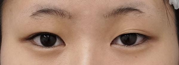 切らない眼瞼下垂プレミアム術前⇒三か月後のBefore写真