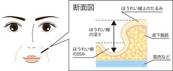 ほうれい線が目立つ原因(断面図)