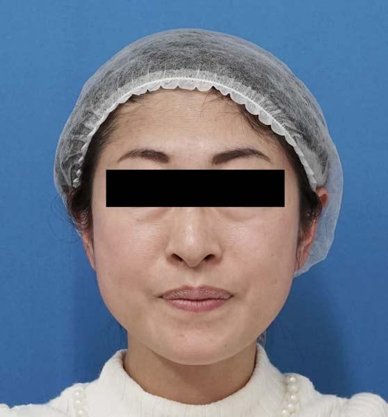 ミントリフトミ二12本 手術直後、1週間後のAfterの写真