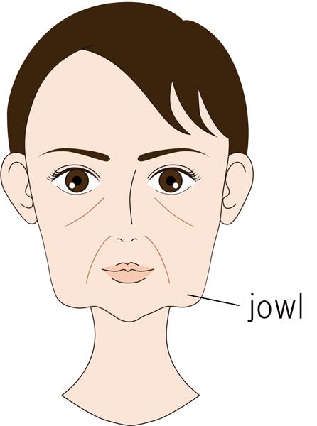 ホホ(jowl)のたるみ