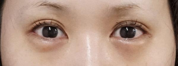 下眼瞼下制 1ヶ月後のBefore写真