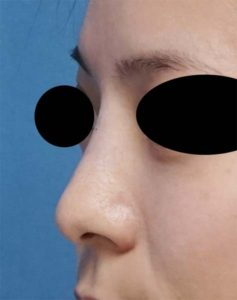 DSC02996左ナナメ鼻