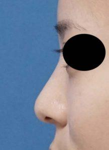 DSC02989左側面鼻