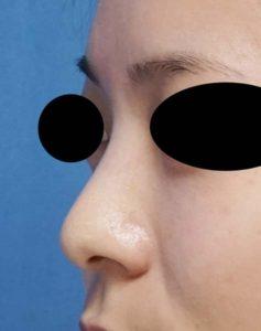DSC02988左ナナメ鼻