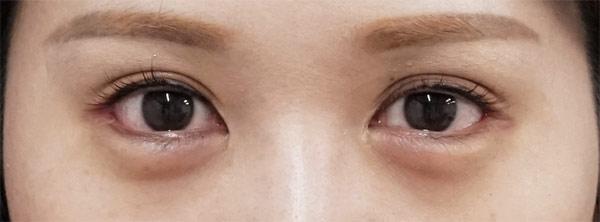 下眼瞼下制 1ヶ月後のAfterの写真