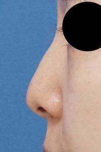 DSC04740鼻左側面