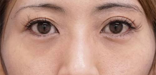 目の下脂肪取り、目の下コンデンス脂肪注入 手術直後~1ヶ月後のAfterの写真