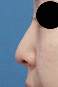 DSC05373鼻左側面