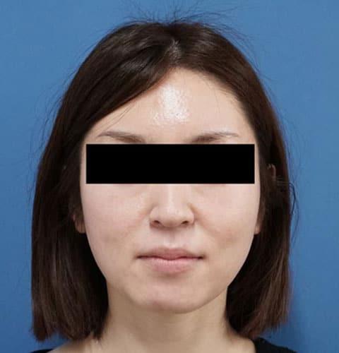 ミントリフトミニクレックス6本、強力小顔ボトックス 2か月後のBefore写真