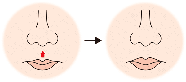 リップリフト変化図