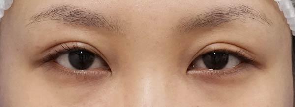 DSC04464切らない眼瞼下垂