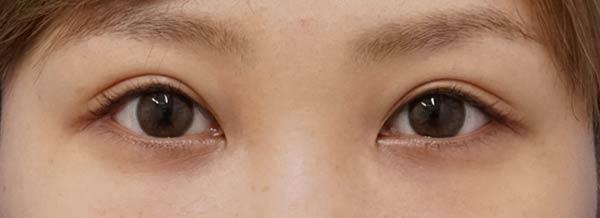 DSC05422切らない眼瞼下垂