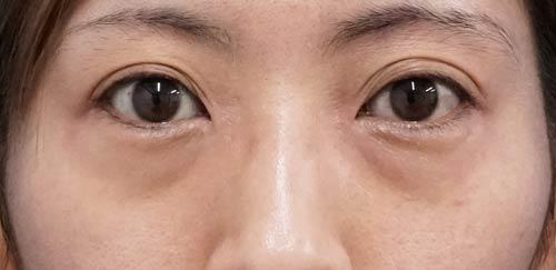 目の下脂肪取り、目の下コンデンス脂肪注入 手術直後~1ヶ月後のBefore写真