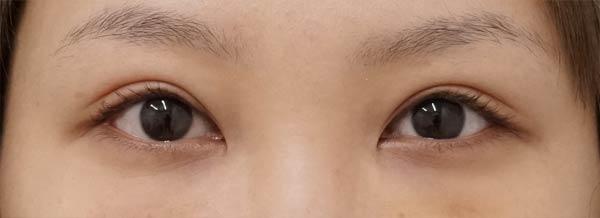 DSC04708切らない眼瞼下垂