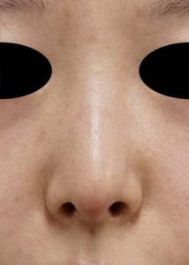 DSC05368鼻正面