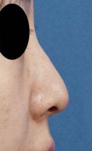 DSC05371鼻右側面