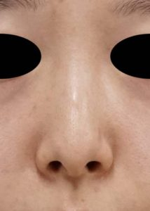 DSC04737鼻正面