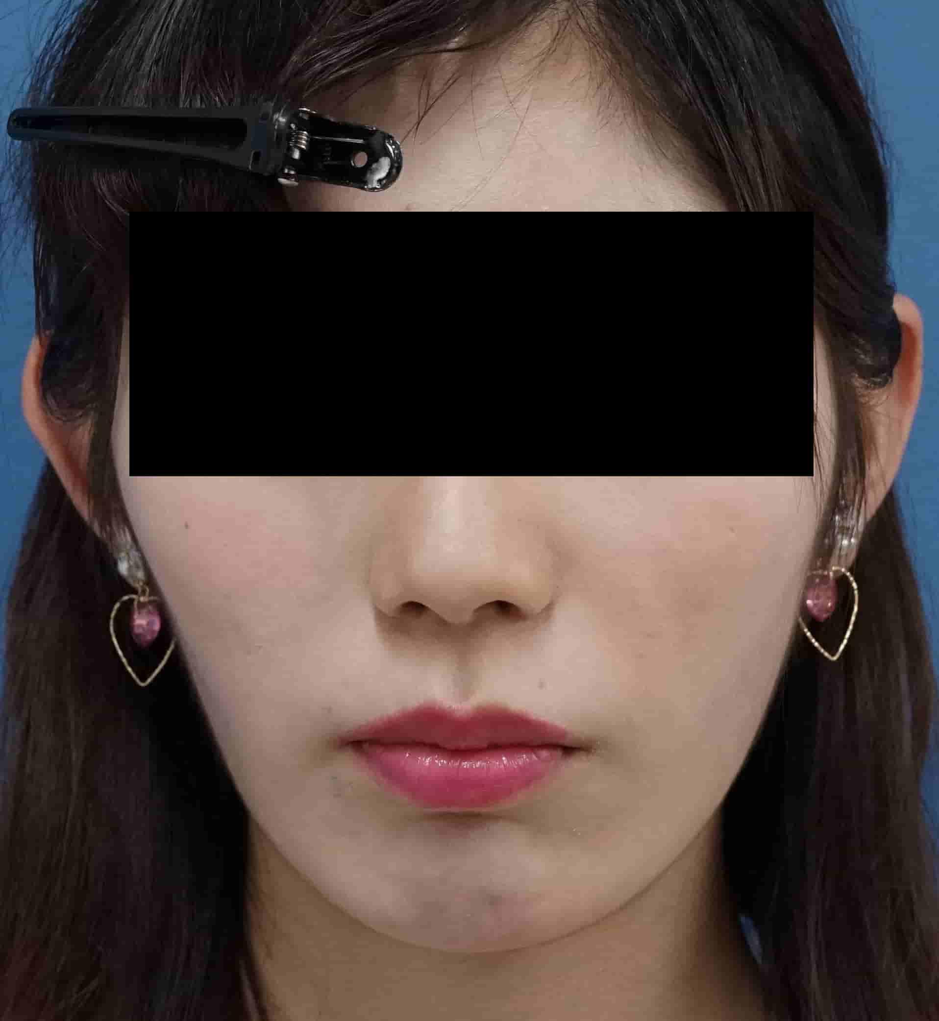 強力小顔3点セット 術前⇒一か月後のAfterの写真
