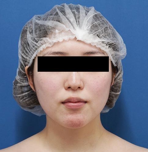 小顔脂肪吸引(ほうれい線上・ホホ・アゴ) 3ヶ月後のBefore写真