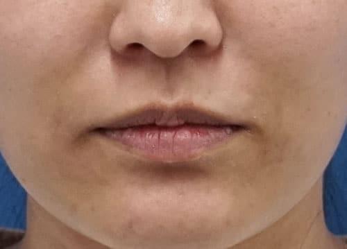 口角を上げるボトックス 1週間後のBefore写真