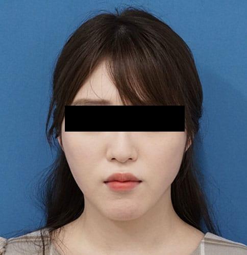 小顔脂肪吸引(ほうれい線上・ホホ・アゴ) 3ヶ月後のAfterの写真