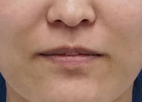 口角を上げるボトックス 1週間後のAfterの写真
