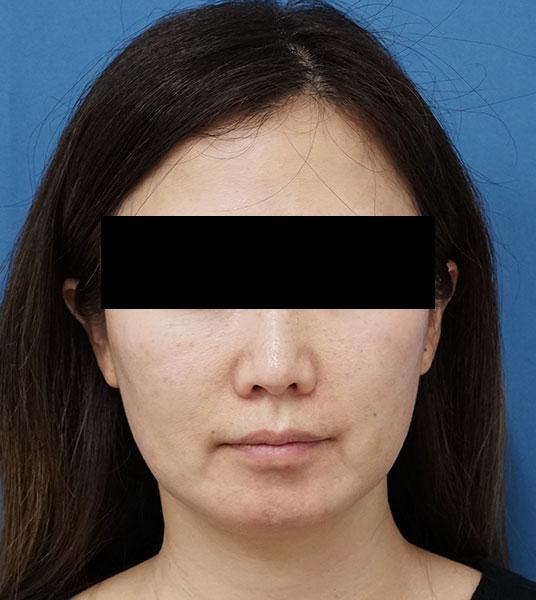 ハイフ(HIFU)全顔 2か月後のBefore写真